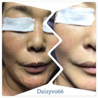 Skin treatment (home based)@ north west area