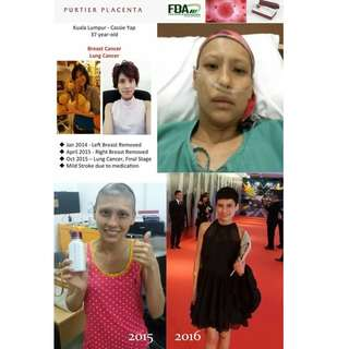 Purtier Stem Cell Therapy Testimonies