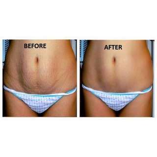 Reduce Stretch Marks, Fight Against Visible Signs Of Ageing