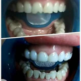 Teeth Beauty and whitening