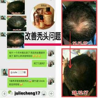养泽堂 YangZeTang shampoo set