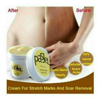 Pasjel Stretch mark & cellulites whitening cream