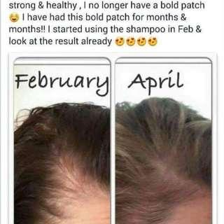 Shampoo for Hairfall & Thinning