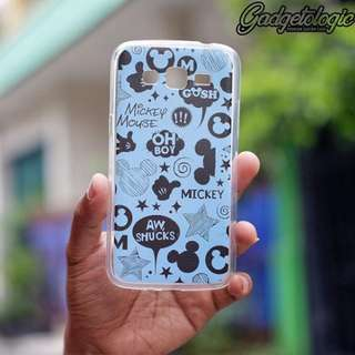 Hardcase Clear Custom Case