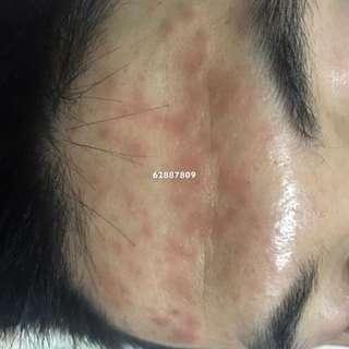 祛斑丶嚴重暗瘡丶陳年濕疹丶中醫美合