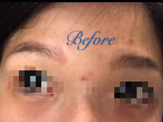 红眉转色Eyebrow tattoo
