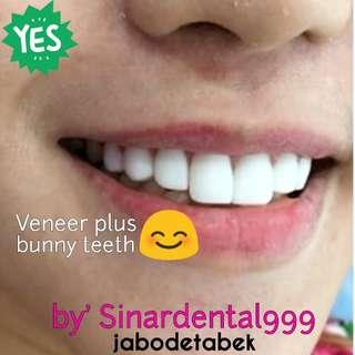 Veneer gigi kualitas super