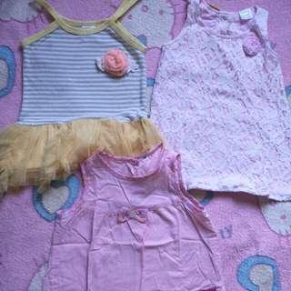 Baby dresses /tops