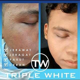 Triplewhite