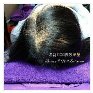 【⚡日韓無創增髮填充技術 】增髮1100條效果😎👸🤴❌植髮❌髮片、❌紮髮、❌頭套、❌無痕接髮,❌不用食藥也❌不用生髮水