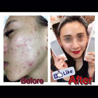 Having facial skin issues? I am here to help!