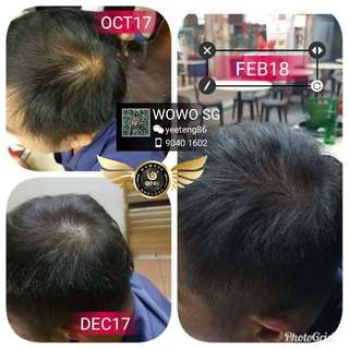 Say bye bye to hair loss problems!