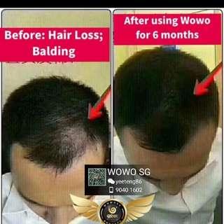 Having balding problems?