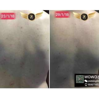 Suffering from back acne?