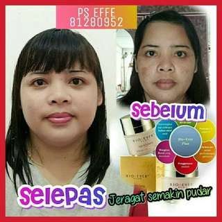 Bio Ever Plus Cream