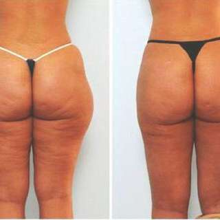 Slimming Body and Recover cellulite