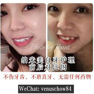 Nano teeth whitening treatment 德国纳米美白牙护理
