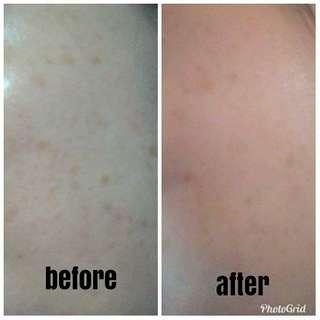 Scars Serum & 7 aura soap