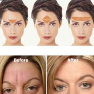 FROWNIES Facial Patches, for Forehead & between Eyes