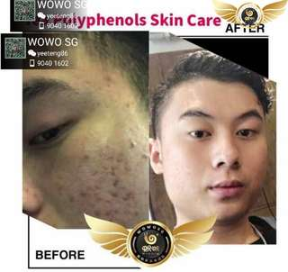 Facing bad acne/ rashes or want to regain youthfulness?