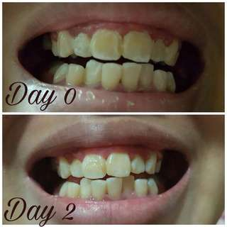 Wan to have a white and shining teeth? Try AP24 ToothPaste.