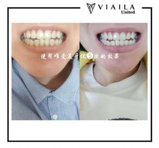牙齒美白機