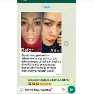 Helwa Beautycare