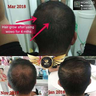 Hair growth shampoo & Hair mask