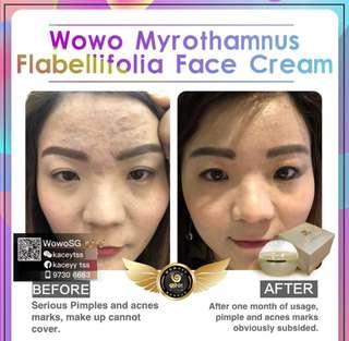 Wowo Face Cream