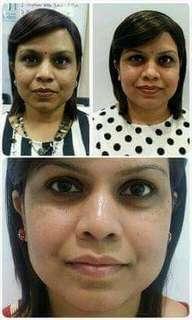 Clear Pigmentation , results Fair Complexion