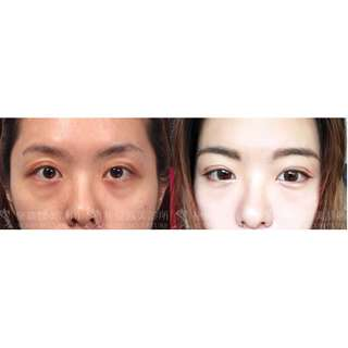 Look Natural and Younger ! Double eyelid incisional method, Epicantal+ Ptosis repair $3800 SGD in Taiwan by Well known Surgeon and clinic