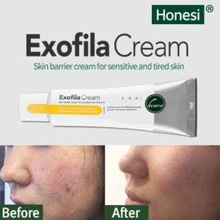 Honesi Exofila Cream (50ml) /Skin regeneration Cream / Acne scar