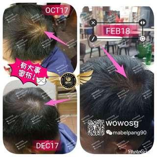 Wowo ginger hair series