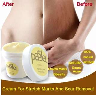 Precious Skin Pasjel Stretchmarks and scars removal cream