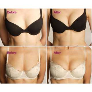 Breast Augmentation Gold standard Mentor Round implants $8520 -Trusted and Highly Skilled Surgeons in Taiwan