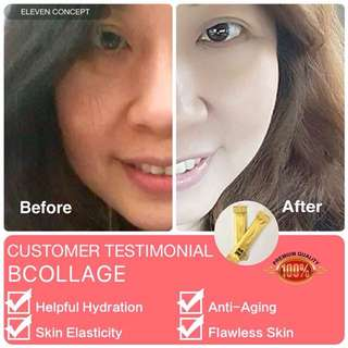 Cheapest Collagen in Town & Guarantee result in a week