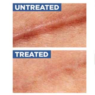 💌 #i3 Silicone Scar Removal Patch Solution for any scar [Suitable for Face and Body] more effective than loshall cream