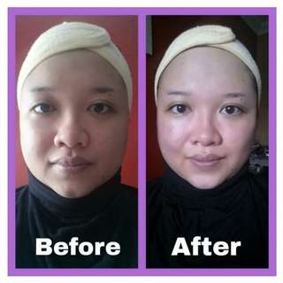 Japanese Instant Face-Lifting Facial