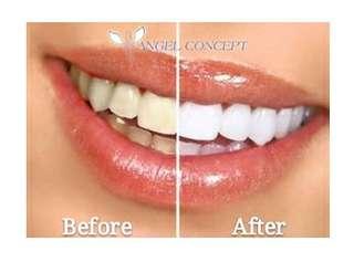 藍光美白牙齒療程 去黃去漬 雪白牙齒 甜美笑容 乾淨清潔 自信迷人 優惠價$98