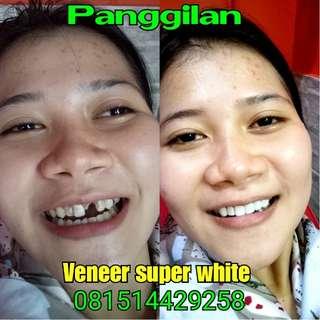 Veneer super white