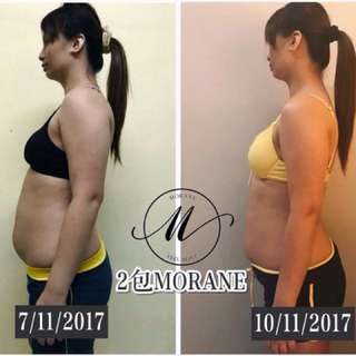 Eco Detox assisted slimming