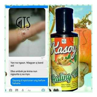 Kasoy Healing Oil #FreeShipping #COD