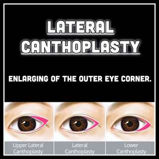 Lateral Canthoplasty