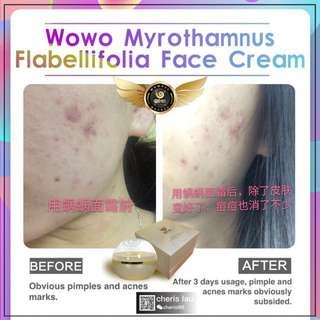 Wowo Myrothamnus Flabellifolius Face Cream