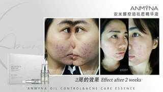 Anmyna Oil Control and Acne Care