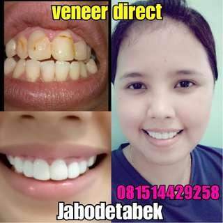 Veneer direct