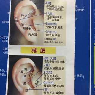 中醫 耳穴貼