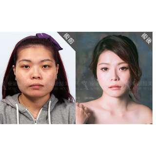 Look Younger and Natural from 30's and 40's..Double eyelid incision method $1600. Specialised Famous Surgeon in Taiwan