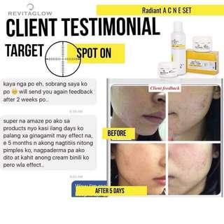 Radiant set for acne prone skin