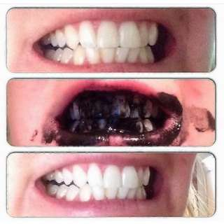 Yellow teeth whitening activated charcoal